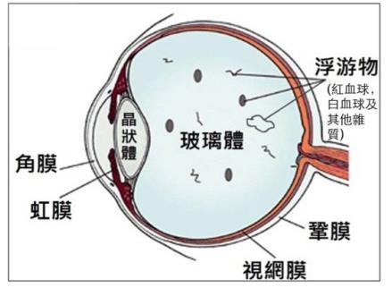 飞蚊症导致视网膜脱落