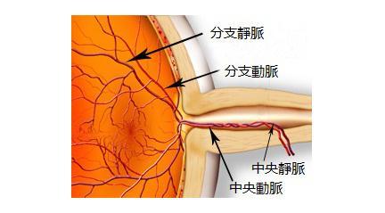 视网膜中央静脉阻塞的症状