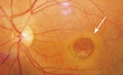 黄斑裂孔的症状
