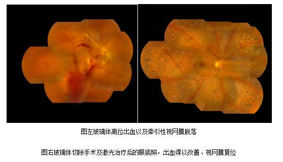 视网膜脱落的症状