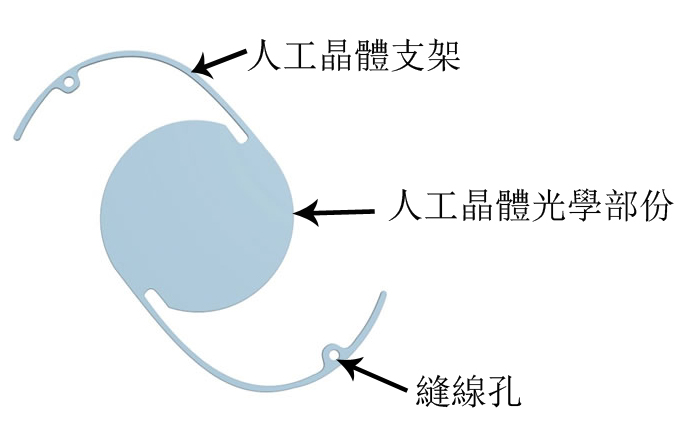 白内障晶体类型