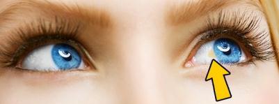 眼白有黄色的东西