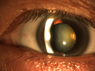 紫外线亦可增加患上白内障的机会