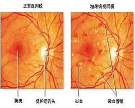 视网膜病变前后对比图