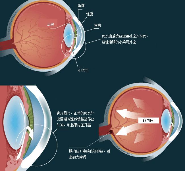 昆明青光眼治疗