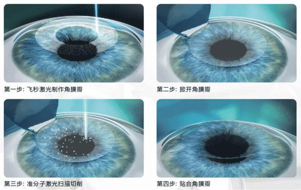 近视激光手术