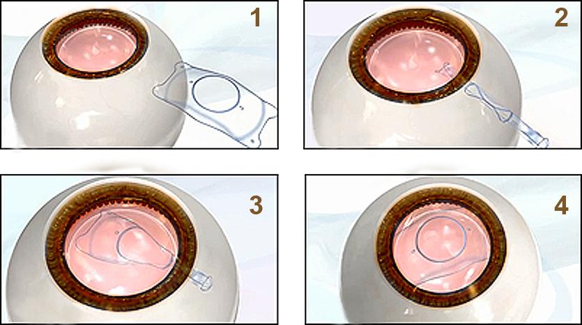 ICL晶体植入术