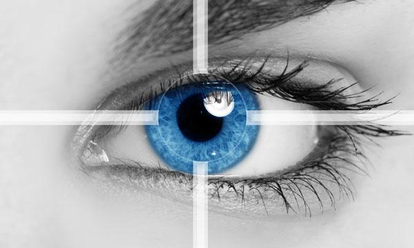 激光治疗近视