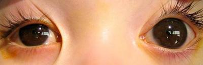 先天性青光眼