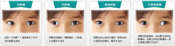 斜视眼怎么治疗矫正