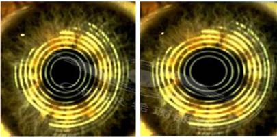 散光角膜形状