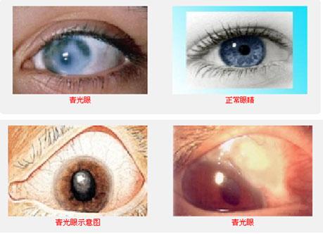 青光眼早期的症状