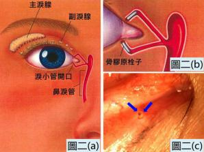 昆明干眼症骨胶原栓子作暂时性的封闭