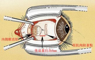 斜视手术治疗方法