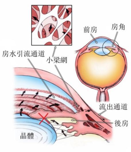 青光眼激光治疗