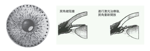 昆明青光眼手术