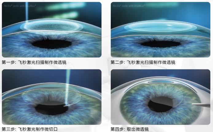 干眼症是什么