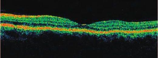 中心浆液性脉络膜视网膜病变