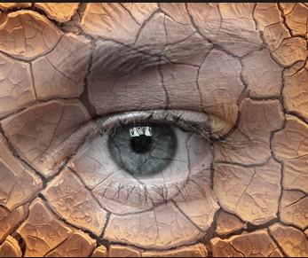 昆明干眼症治疗