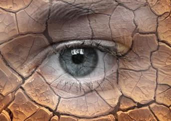什么是干眼症