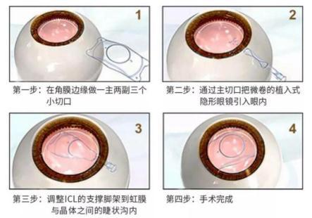 ICL晶体植入术可靠吗