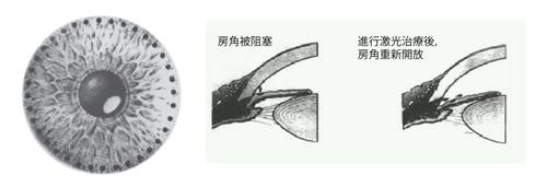 急性青光眼治疗