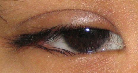 眼红、发痒