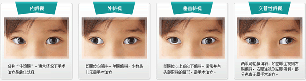 斜视眼治疗