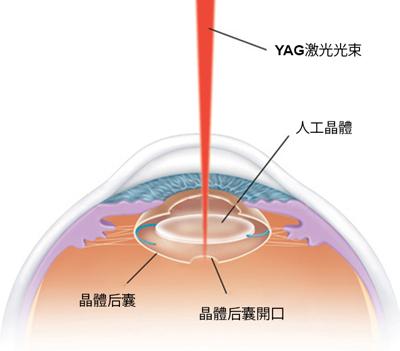 眼药水对白内障有用吗