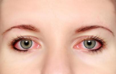 眼睛发红、眼屎多是怎么回事