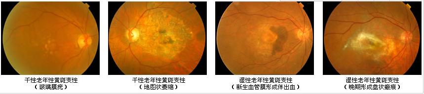 眼睛黄斑是什么?有什么危害