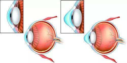 近视和散光度数增加快的原因