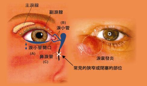 干眼症怎么治疗好