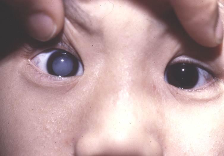 孩子有白内障的症状有哪些