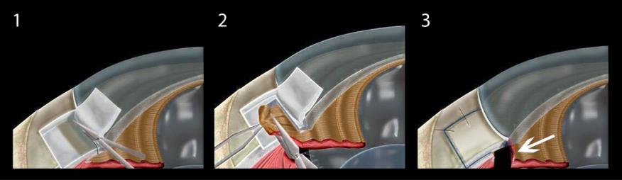 青光眼可以手术治疗吗?