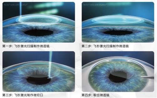 高度近视能做激光近视手术吗?