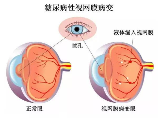 视网膜脱落怎么治疗