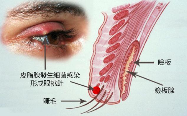 过敏性结膜炎有什么症状?