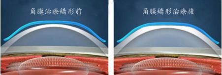近视多少度可以验配角膜塑形镜