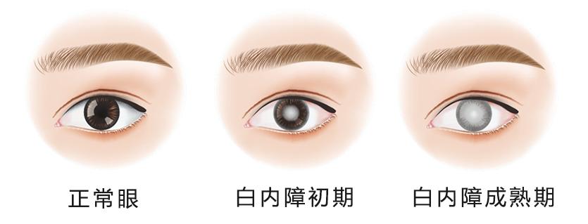 戴眼镜后近视度数增长快是什么原因?
