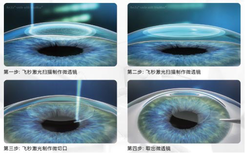 近视激光手术适合哪些人?