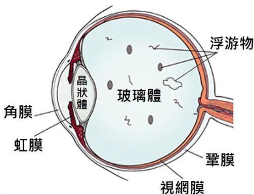 视网膜脱落严重吗?