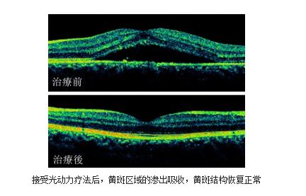 昆明哪家眼科能治视网膜脱落