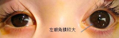 先天性青光眼手术风险大吗