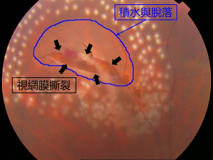 昆明哪家眼科医院治视网膜脱落好?