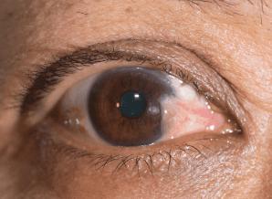眼睛有红血丝和异物是怎么回事?