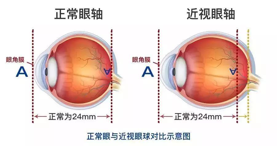 云南治疗视网膜哪家眼科医院好?