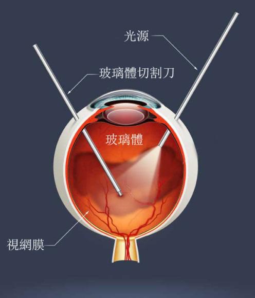 视网膜脱落症状有哪些?