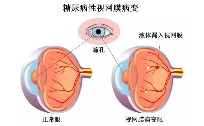 糖尿病视网膜病变怎么治疗好得快?