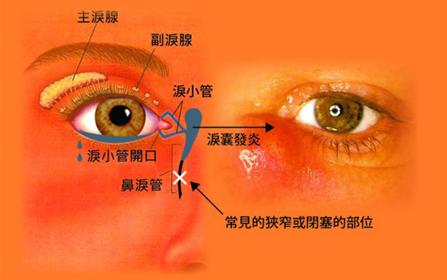 眼泪过多、眼睛红是什么原因造成?